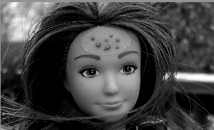 New Barbie wears her removable acne patches